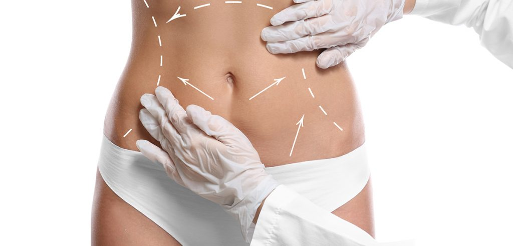 Costs for Tumescent Liposuction