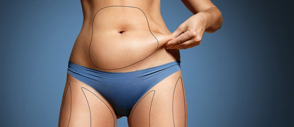 Liposuction information belly view with procedure guides