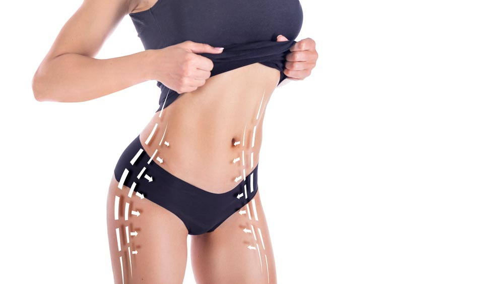 posuction-and-tummy-tuck